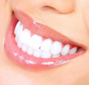 the best teeth whitening kits