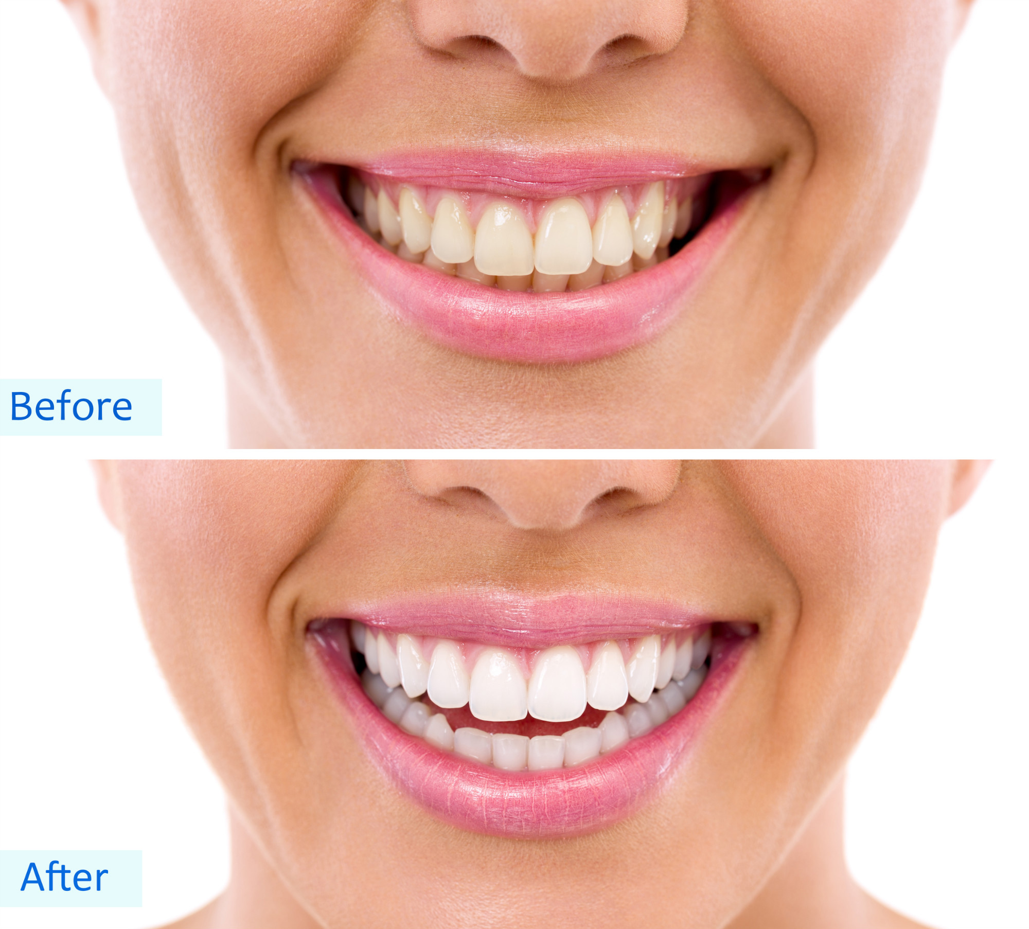 Home Teeth Whitening Kits A 101 Introduction Toothstars